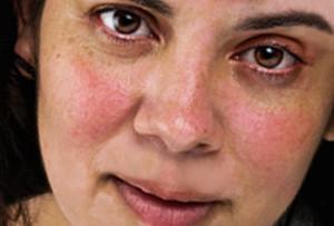 Краснота кожи