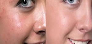 Лечение покраснений кожи